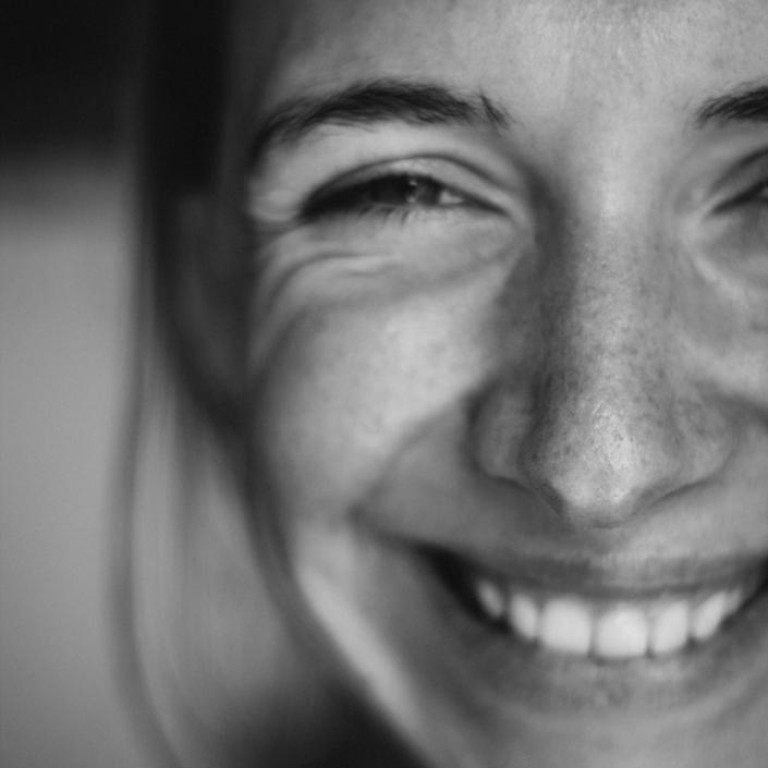 Junge Frau mit Gesichtslähmungen
